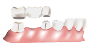Dental Bridge - Dentist in Huntsville, AL
