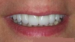 Fractured Teeth After - Dentist in Huntsville, AL