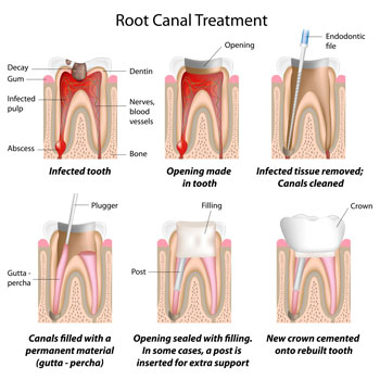 Root Canal Treatment - Dentist in Huntsville, AL